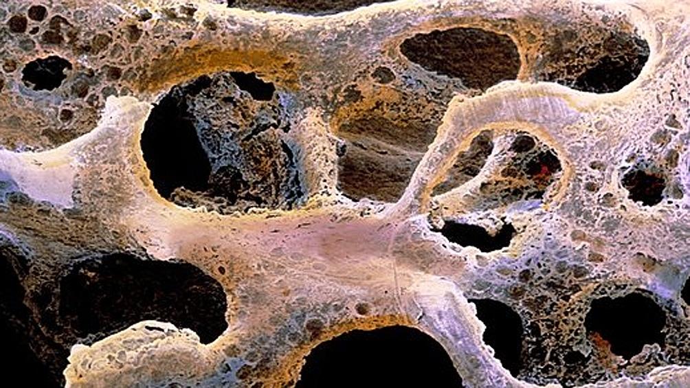 La pandemia incrementó la fragilidad en personas con osteoporosis